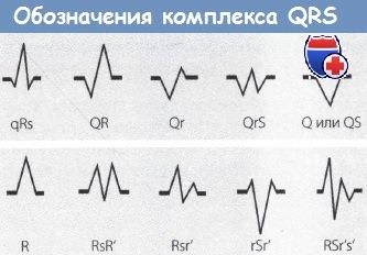 Как проводится экг, ее расшифровка и нормативные показатели